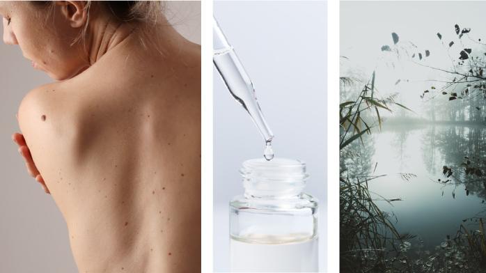 Illustration Principe : Consider skin as an ecosystem